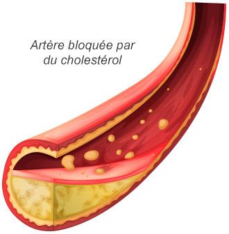 Artère bloquée par du cholestérol