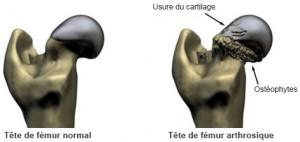 Douleurs ostéo-articulaires