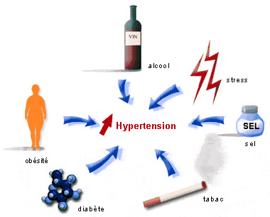 les origines de l'hypertension