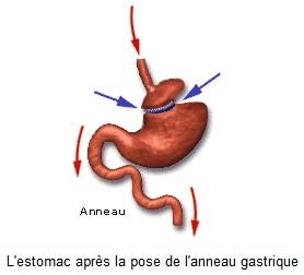 Suivi clinique après une gastroplastie