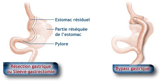 Chirurgie bariatrique - estomac