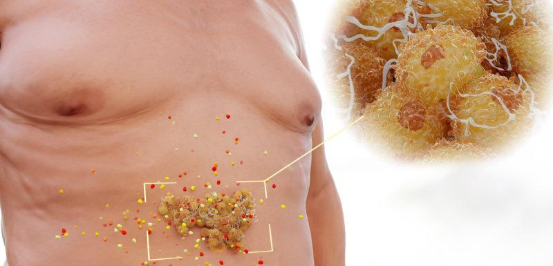 Complications de l'obésité : la composition du tissu adipeux en cause