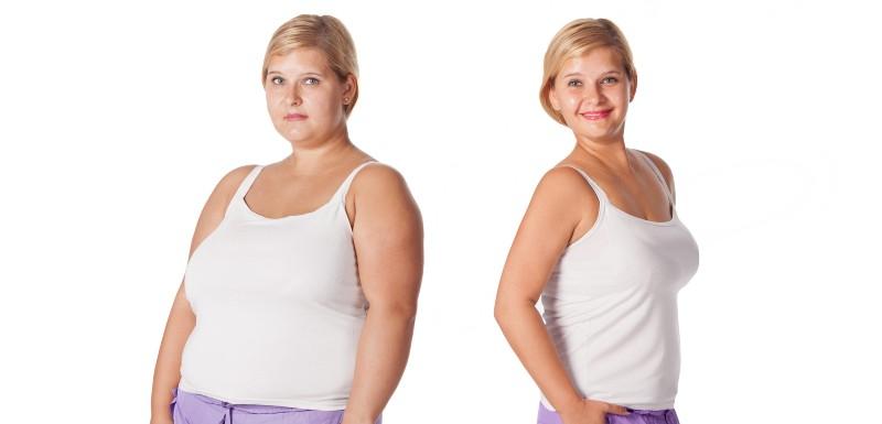 obesite-chirurgie-bariatrique-adolescent